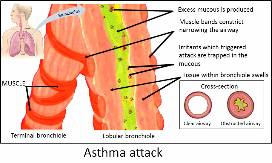 Natural Cure For Asthma Attack